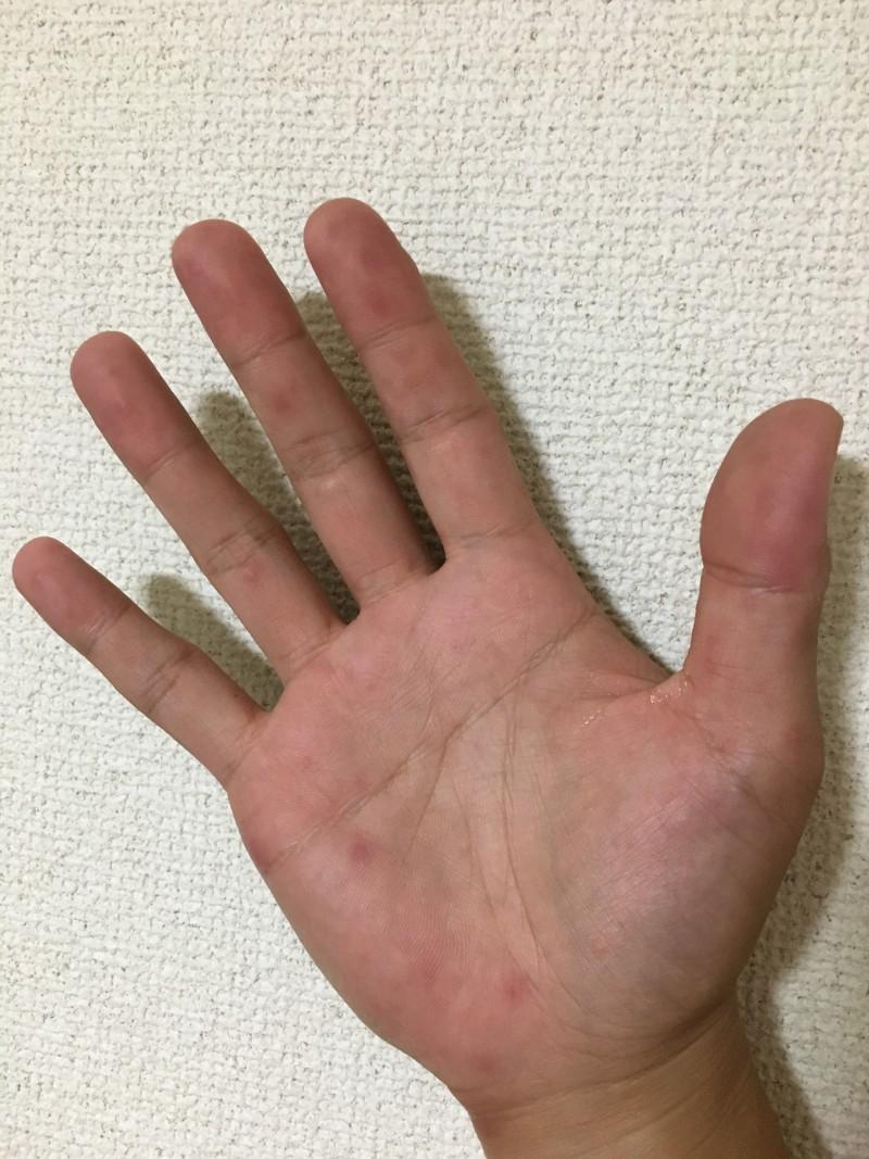 手足 口 病 大人 ブログ